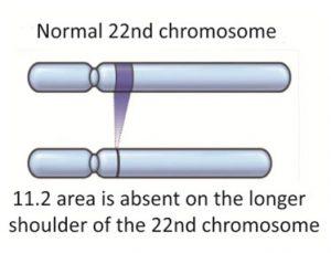 22q11.2 delecijski sindrom, normalni i oštećeni kromosom